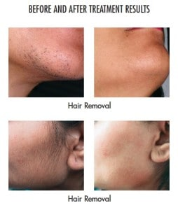 Gentleyag-hair-removal